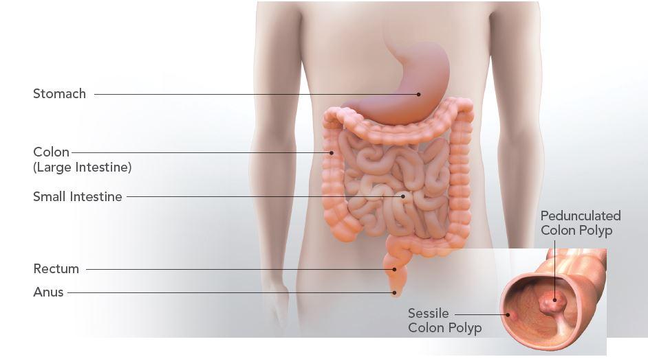 Colon Large Intestine Choice Image - human anatomy organs diagram