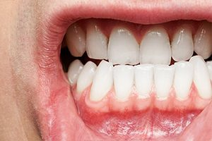 6 Ways to Keep Your Gums Healthy | Community Health of ...