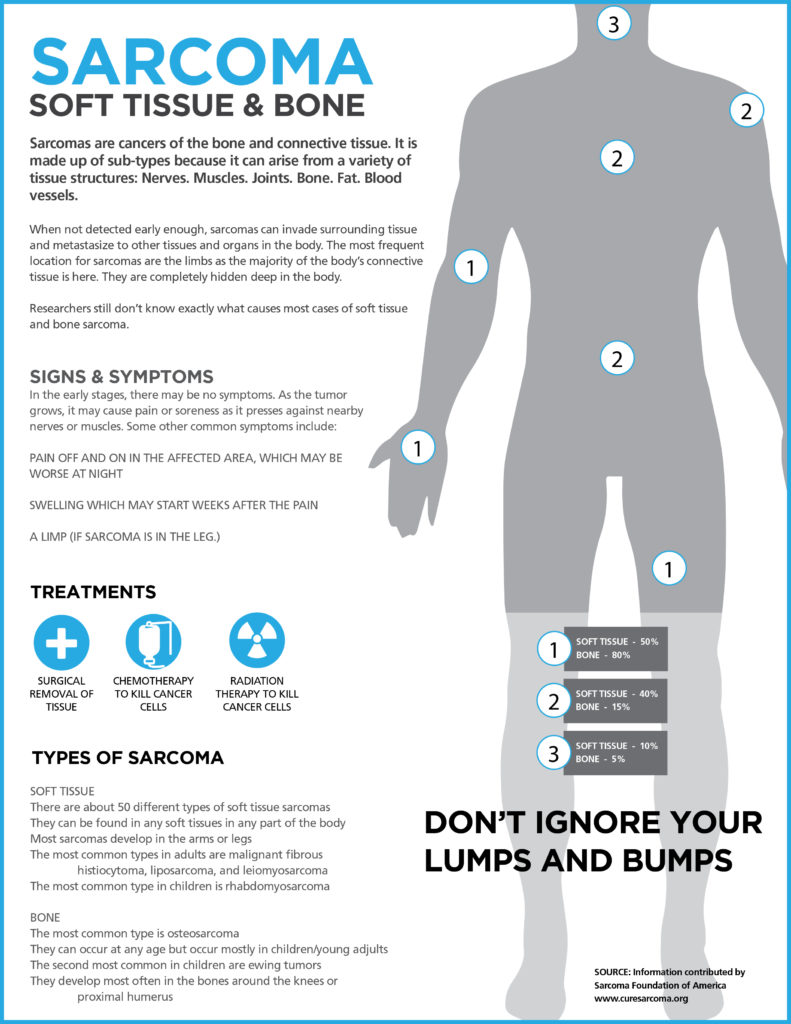 What Is Sarcoma Graphic