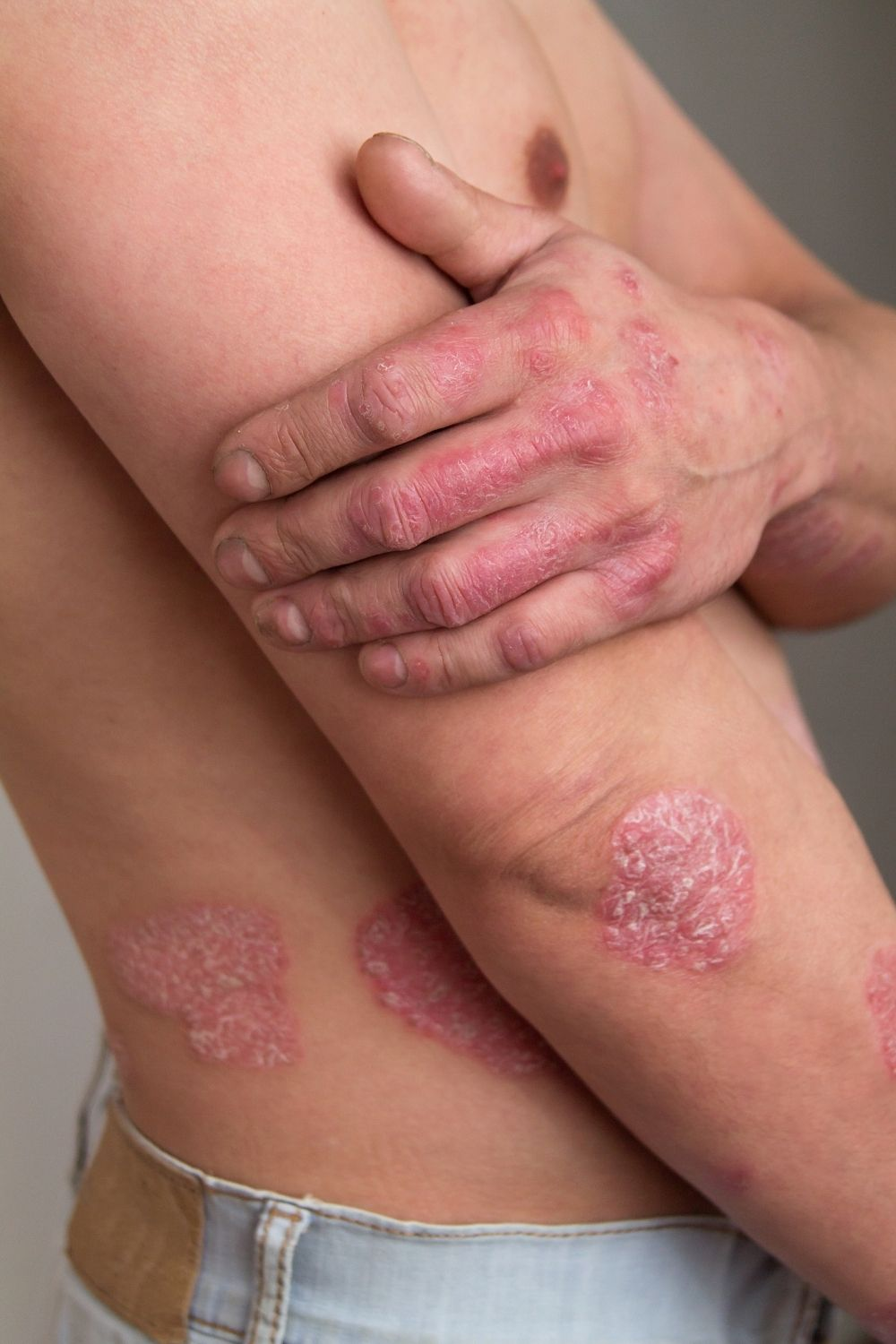 What is Psoriasis CHCW